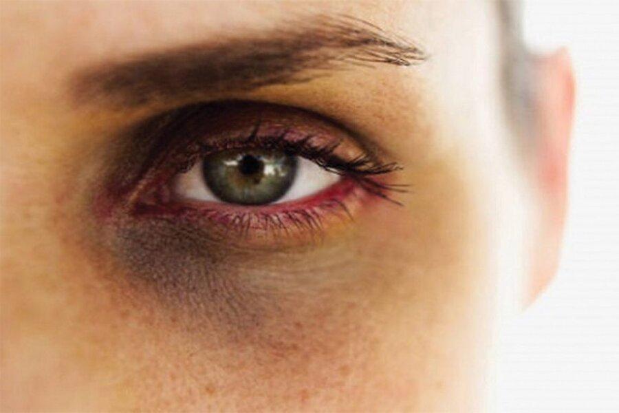 روش های طبیعی برای بهبود حلقه های سیاه دور چشم