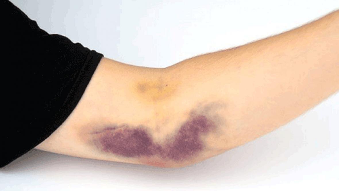 چگونه پوست خود به خود کبود می گردد؟