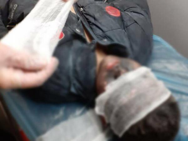 خبرنگاران ترقه سازی 2 نوجوان در مشهد منجر به انفجار منزل مسکونی شد